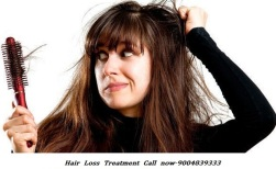 hair-fall-treatment