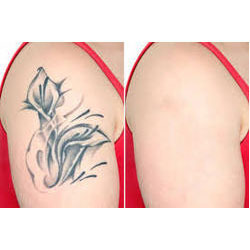 tattoo-removal-laser-treatment-250x250